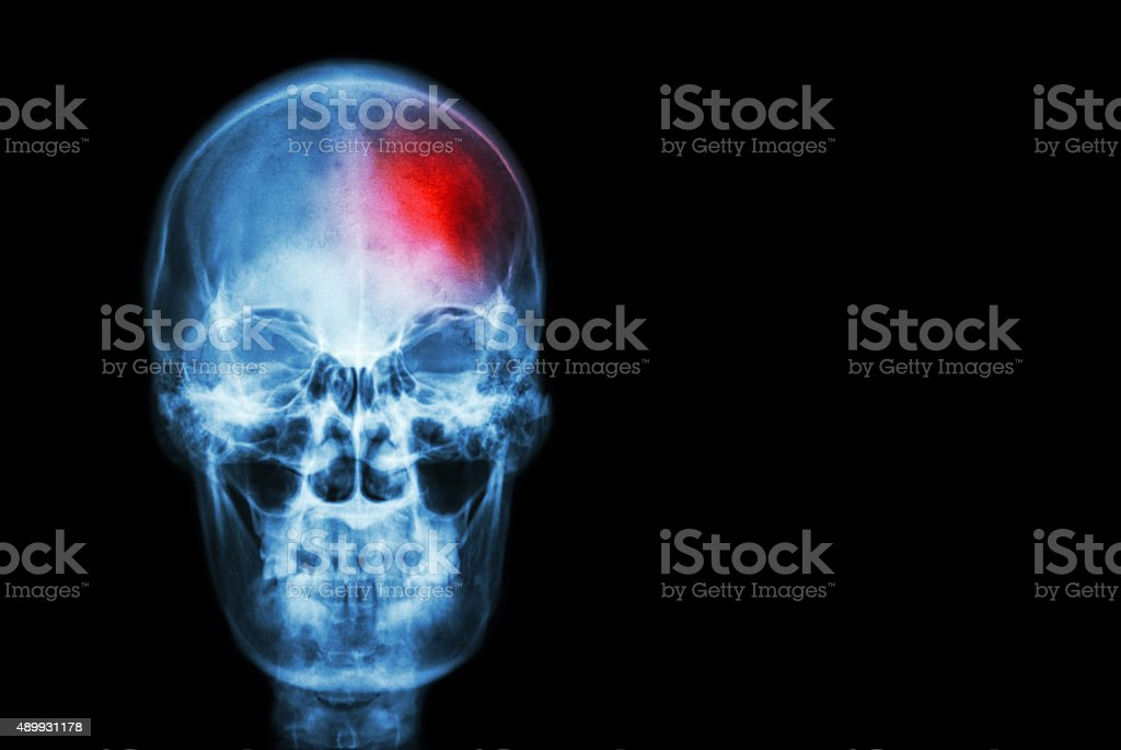 Stroke ( Cerebrovascular accident ) stock photo