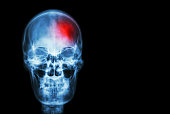 Stroke ( Cerebrovascular accident )