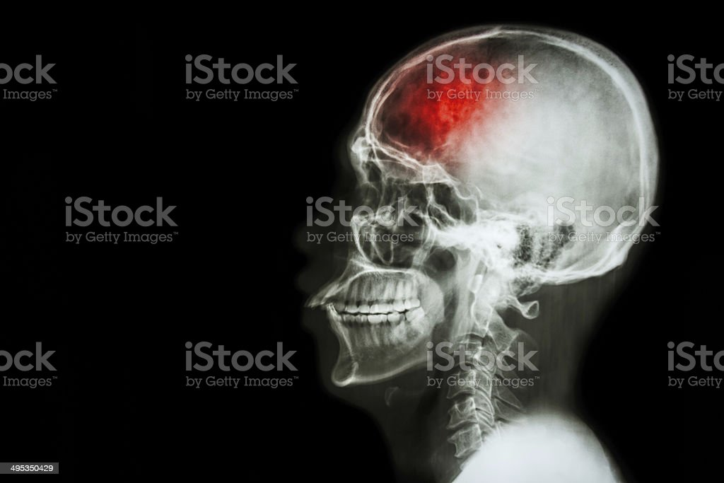 'Stroke' (cerebrovascular accident) stock photo