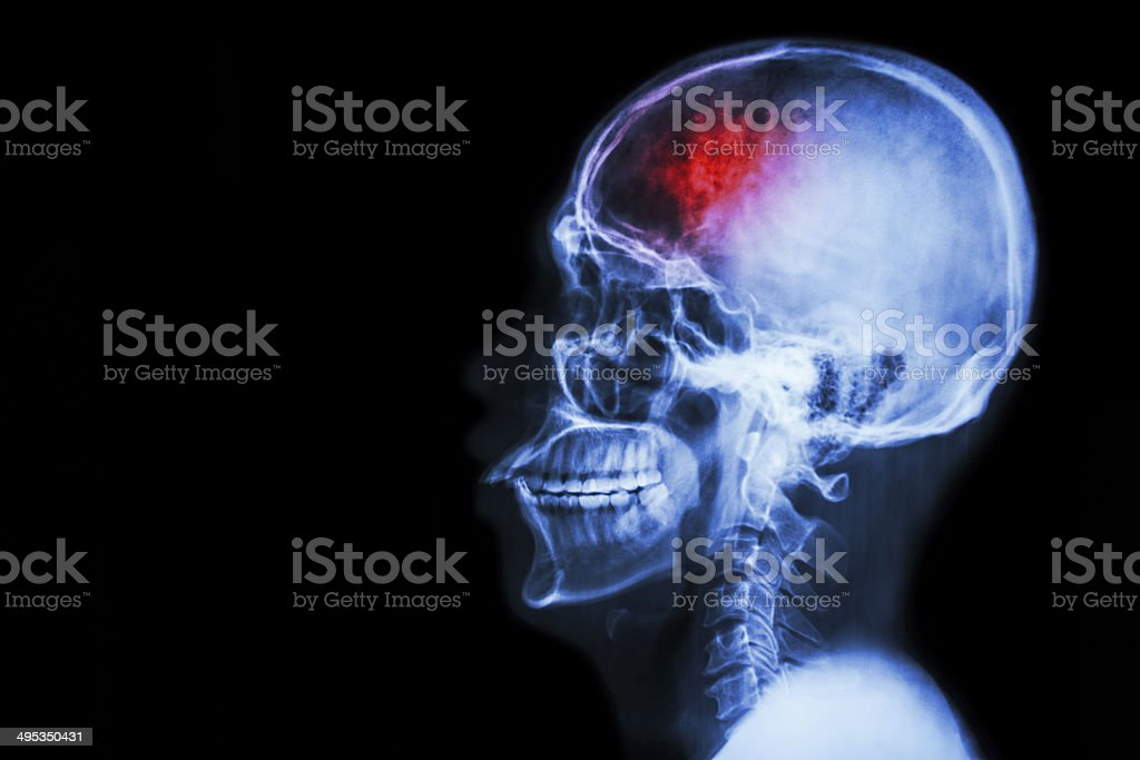 Stroke (cerebrovascular accident) royalty-free stock photo
