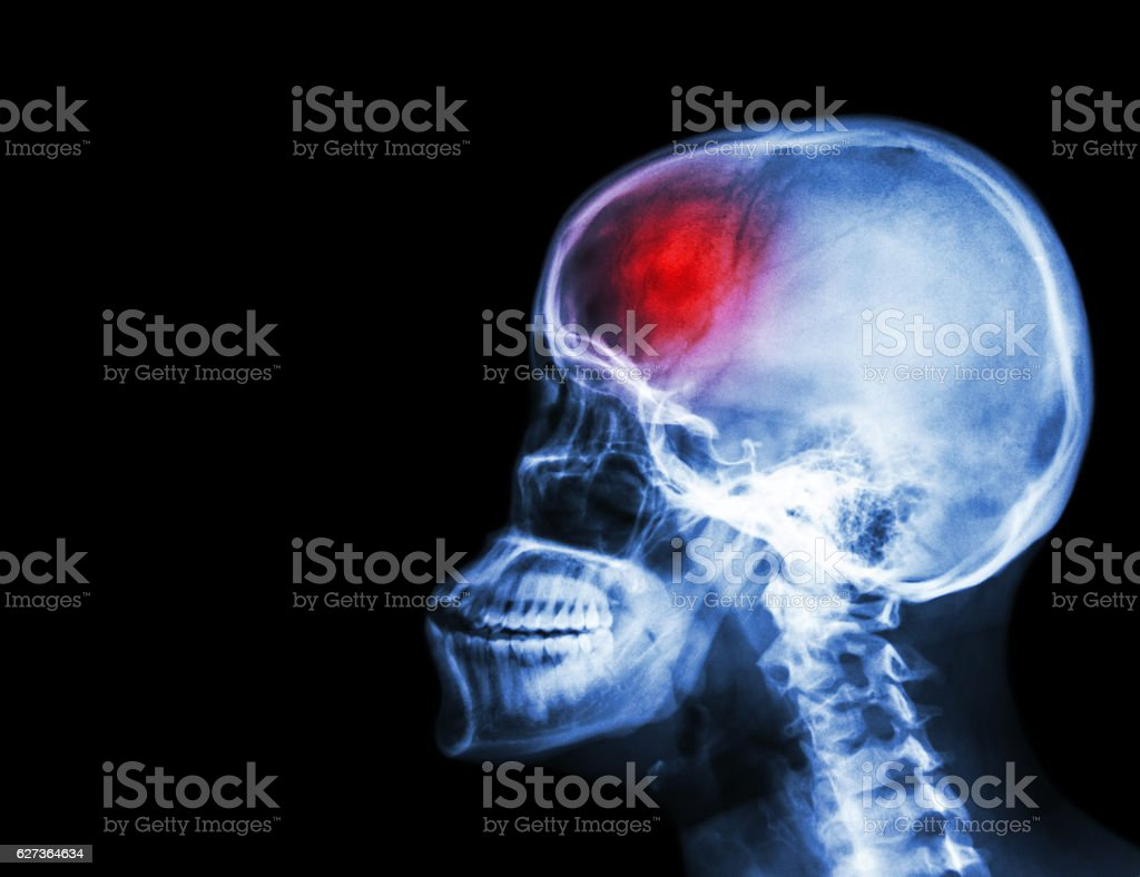 Stroke stock photo