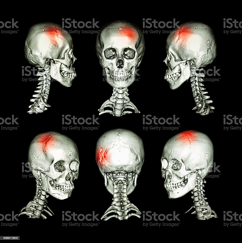 stroke , skull fracture , neurological condition . stock photo