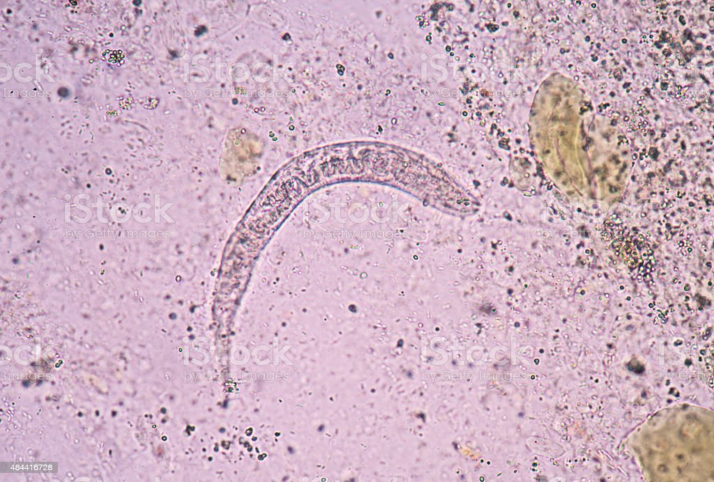 Strongyloides stercoralis is a human parasitic roundworm causing stock photo
