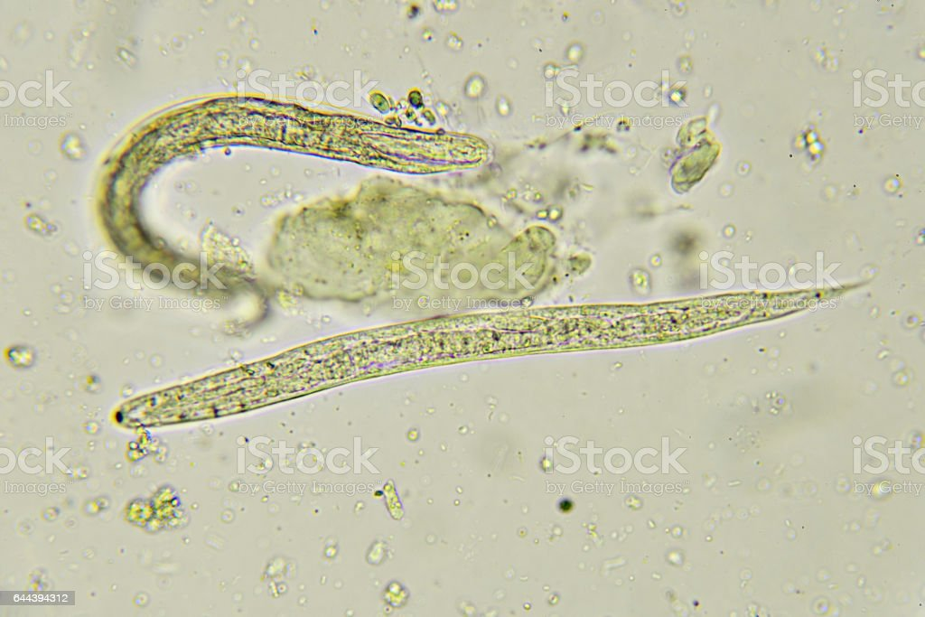 Strongyloides stercoralis (threadworm) stock photo