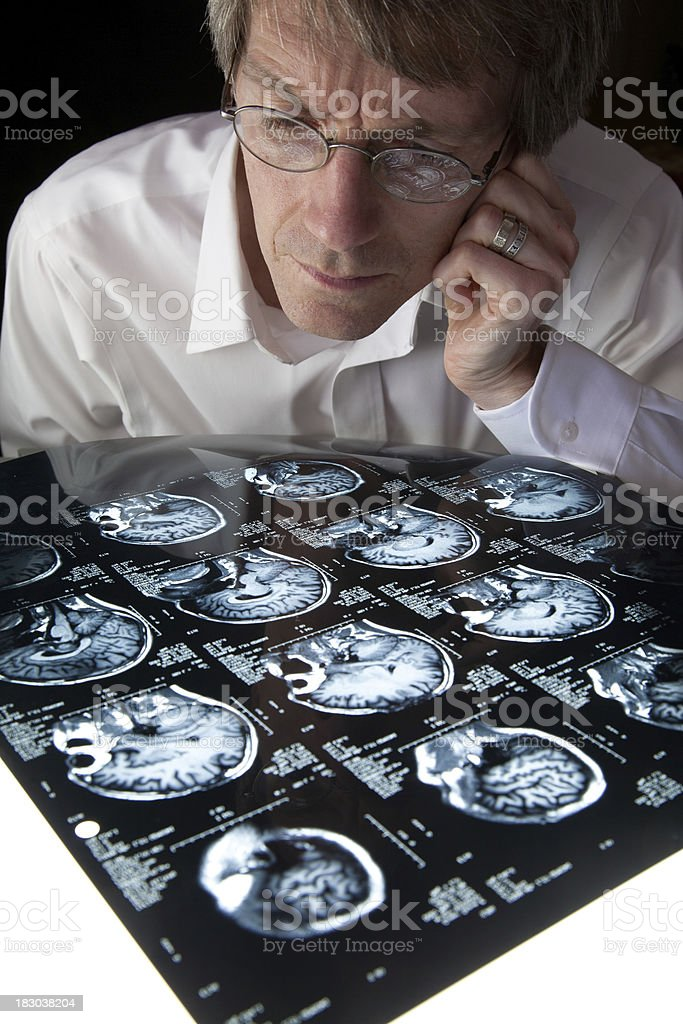 Studying an MRI brain scan royalty-free stock photo