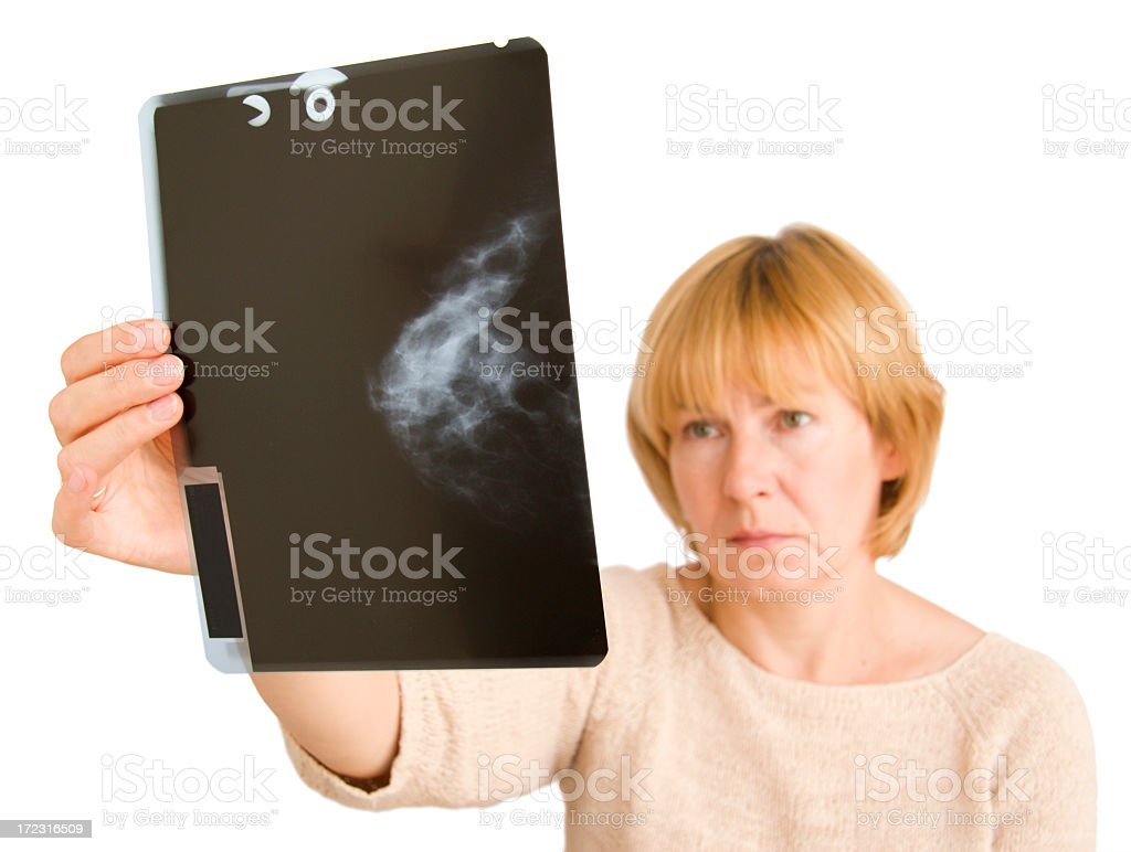 Studying the x-Ray of the test that was done  stock photo