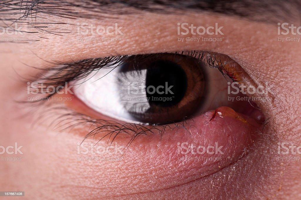 Stye - Eye Infection stock photo