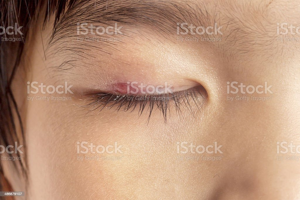 Stye eye infection royalty-free stock photo