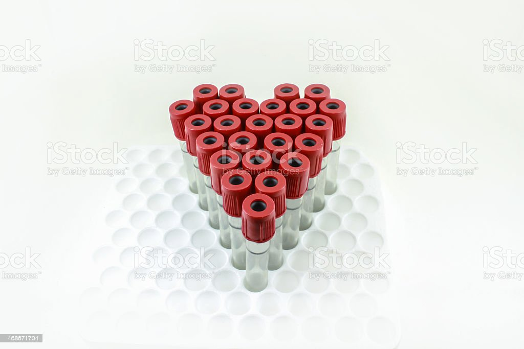 Sum blood tubes for test. stock photo