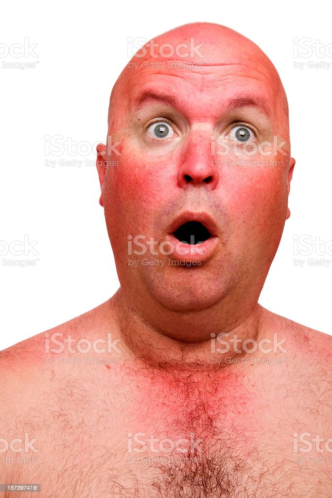 Sun Burn royalty-free stock photo