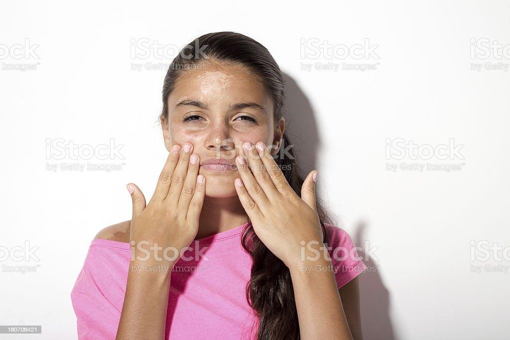 Sunburned - Teenager with sunburn royalty-free stock photo