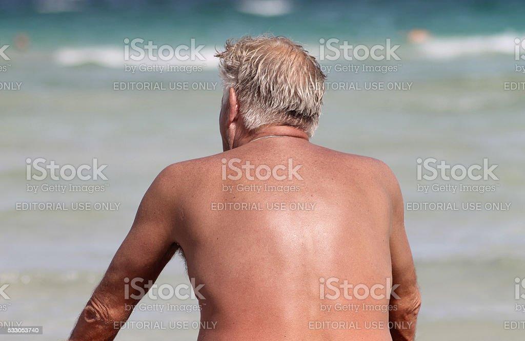 Sunburnt senior man by the sea stock photo