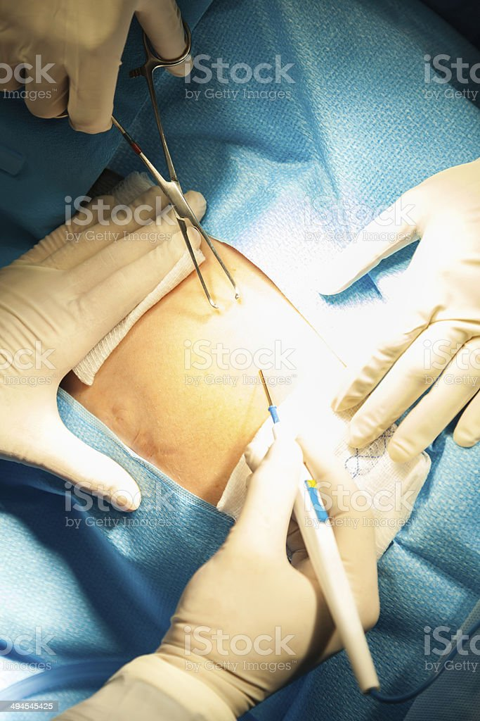 Surgeons performing cesarean section on pregnant patient stock photo