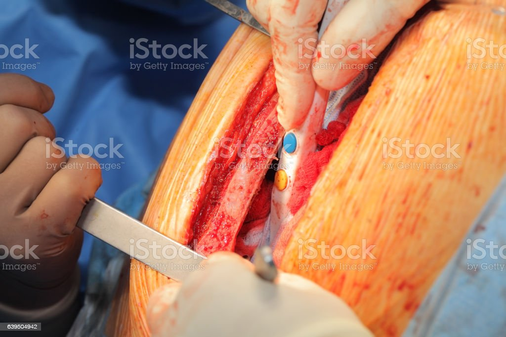 Surgeons working with dissected chest stock photo