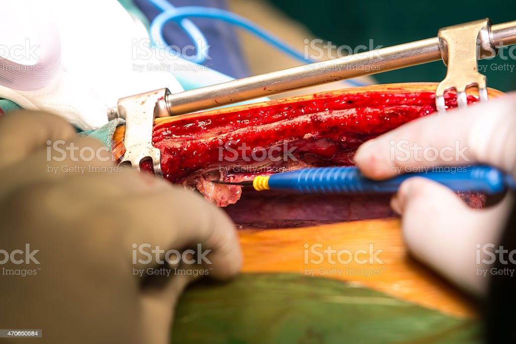 Surgery for Coronary Artery Bypass stock photo