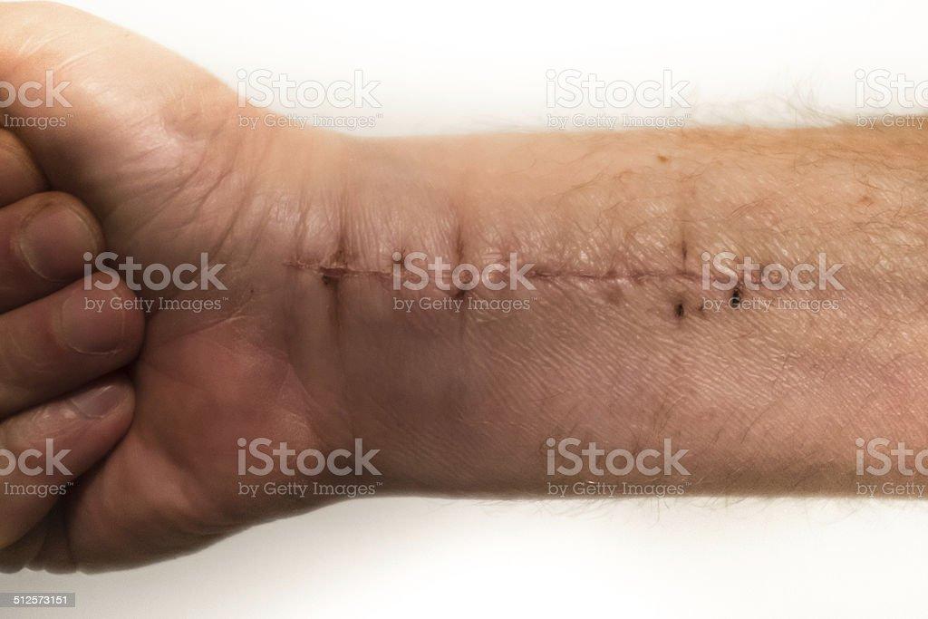 Surgery on Wrist stock photo