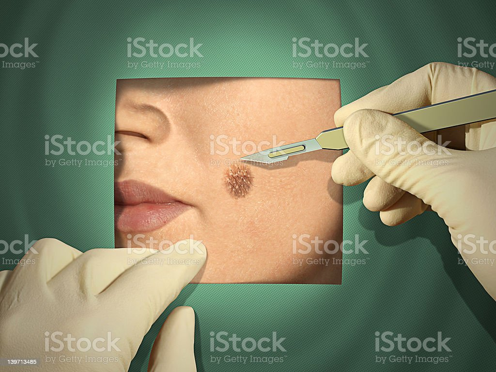 Surgery royalty-free stock photo