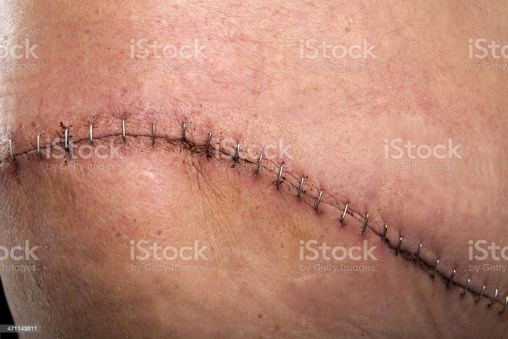 Surgery scar royalty-free stock photo