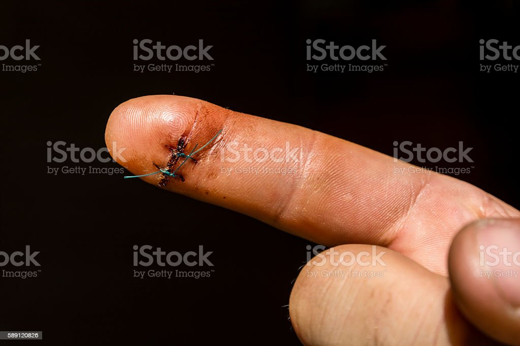 Surgical suture on the finger. stock photo