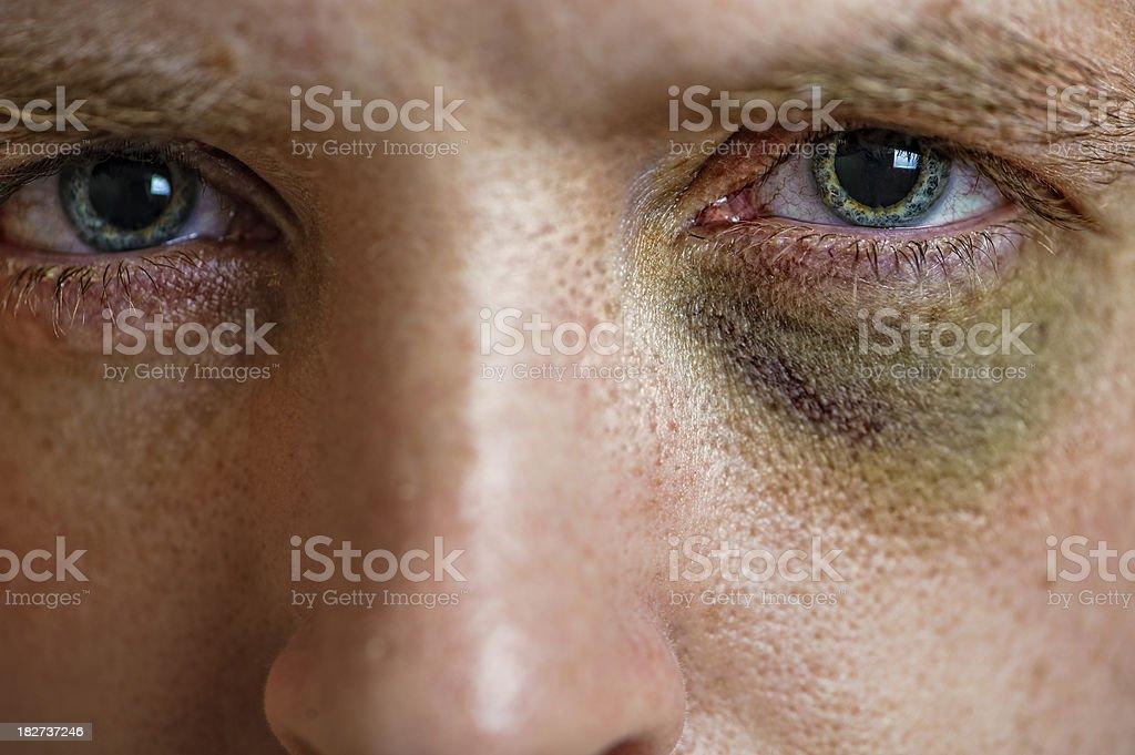 Sweet Black Eye Action stock photo