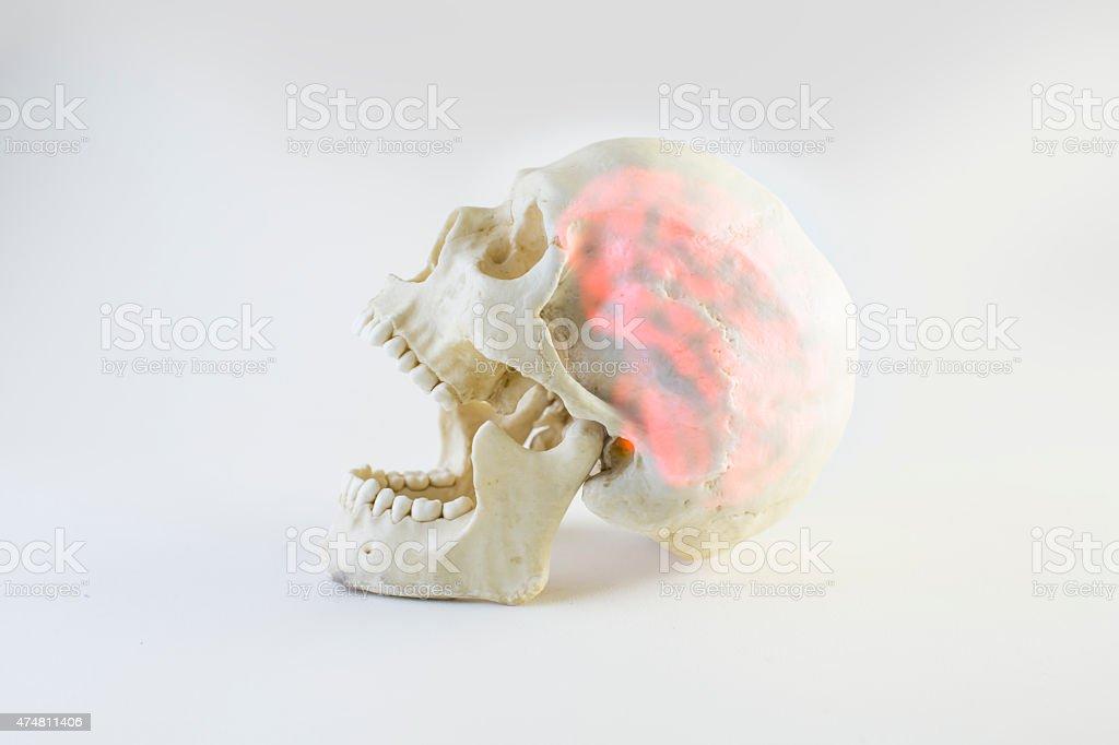 swollen brain mental pain stock photo