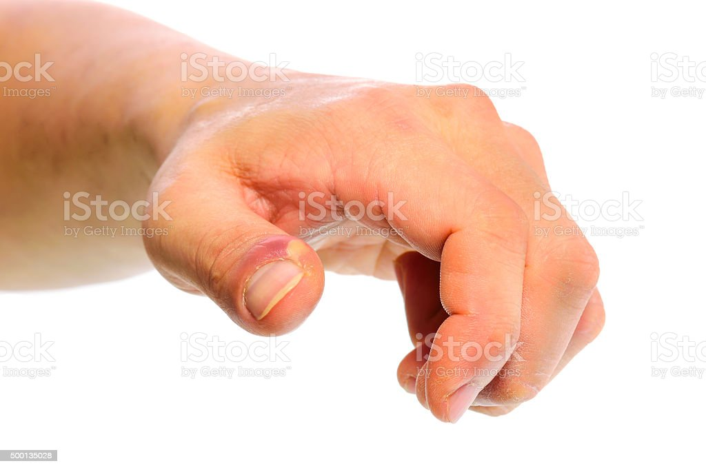 Swollen finger with fingernail bed inflammation due to bacterial stock photo