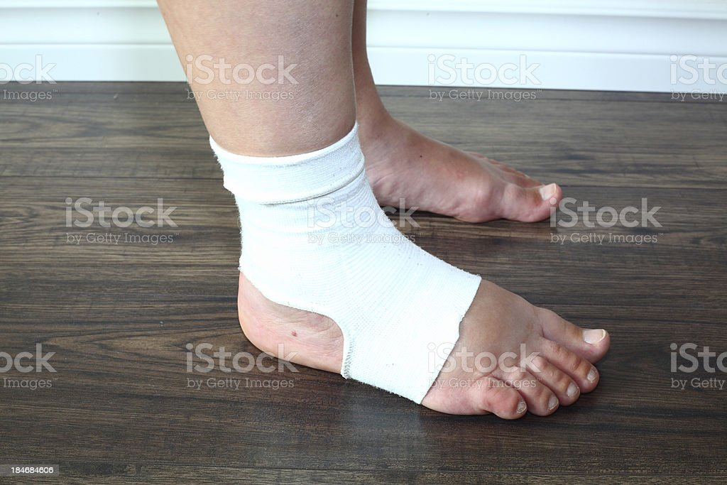 Swollen foot in compression sock during pregnancy stock photo