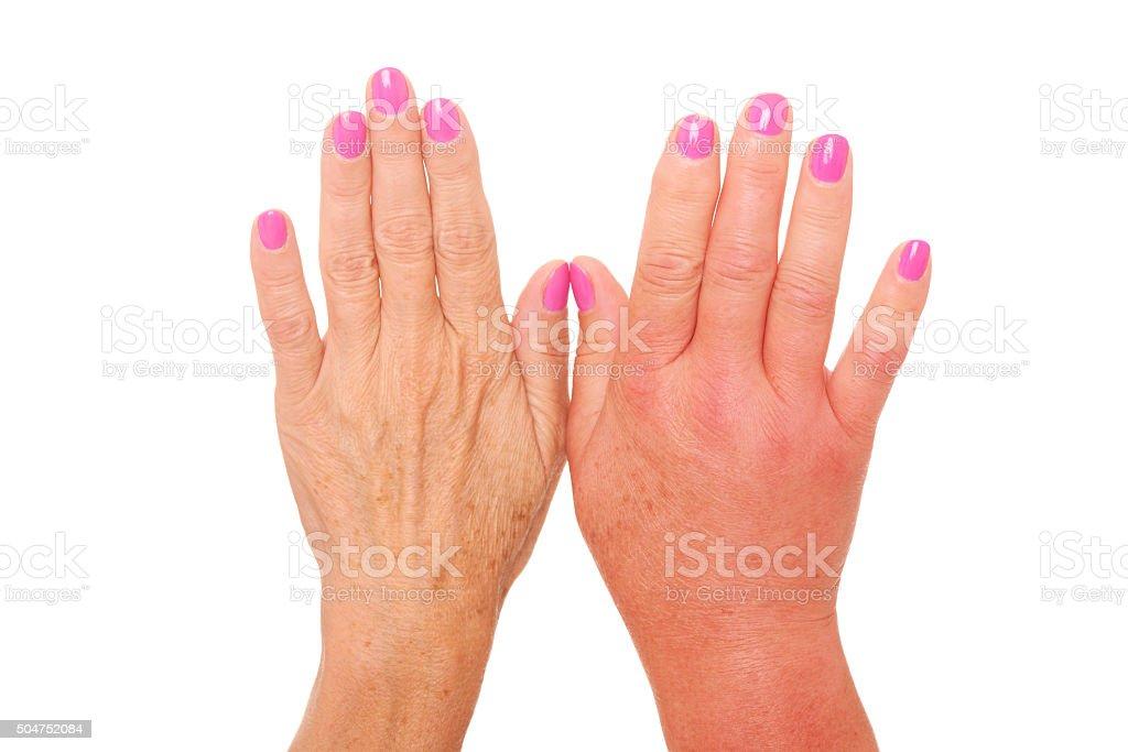 Swollen hand stock photo