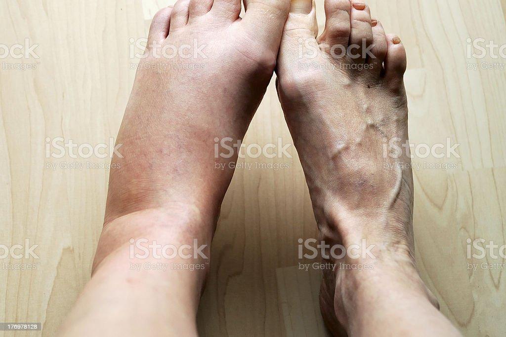 swollen leg stock photo