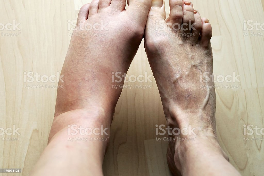 swollen leg stock photo