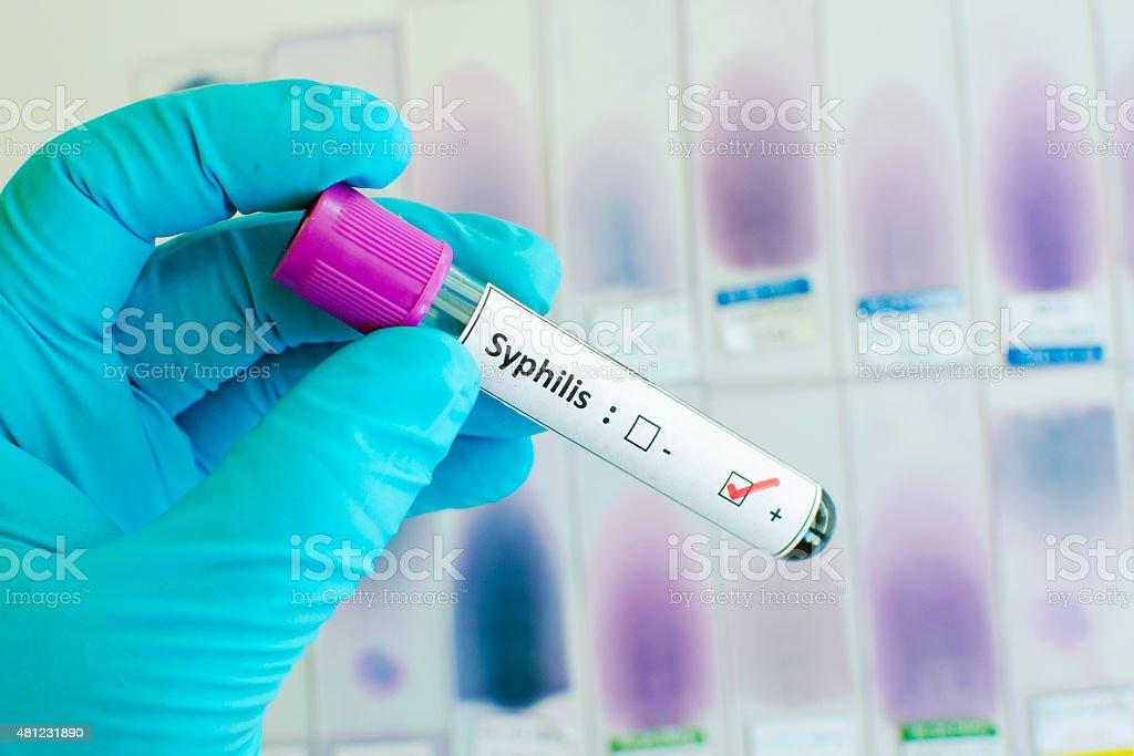 Syphilis positive stock photo