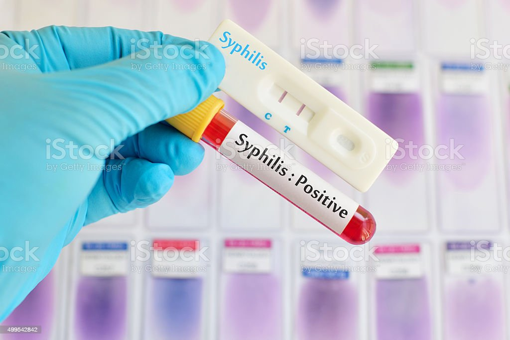 Syphilis testing positive stock photo