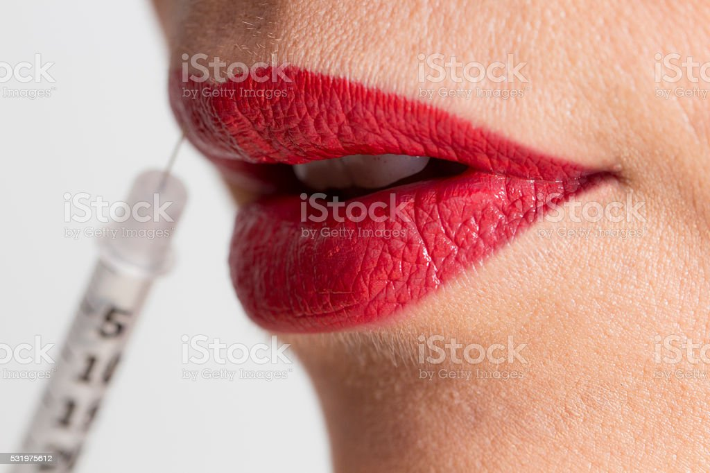 Syringe For Cosmetic Surgery stock photo