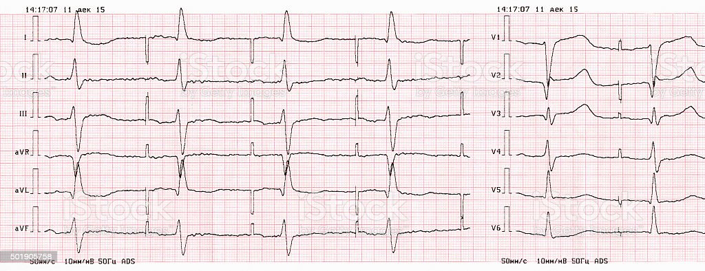 Tape ECG with pacemaker rhythm (atrial pacing) stock photo