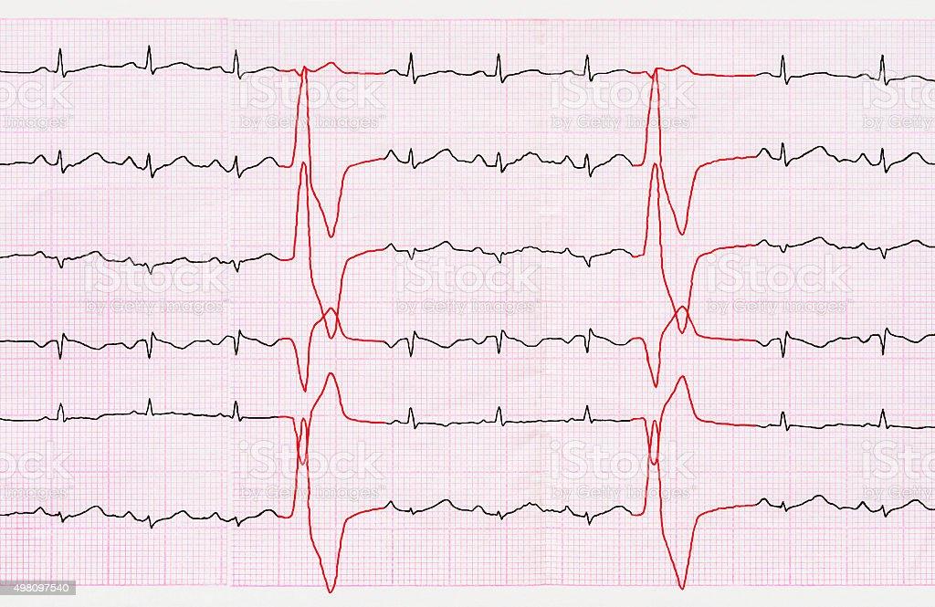 Tape ECG with ventricular premature beats (quadrigeminia) stock photo