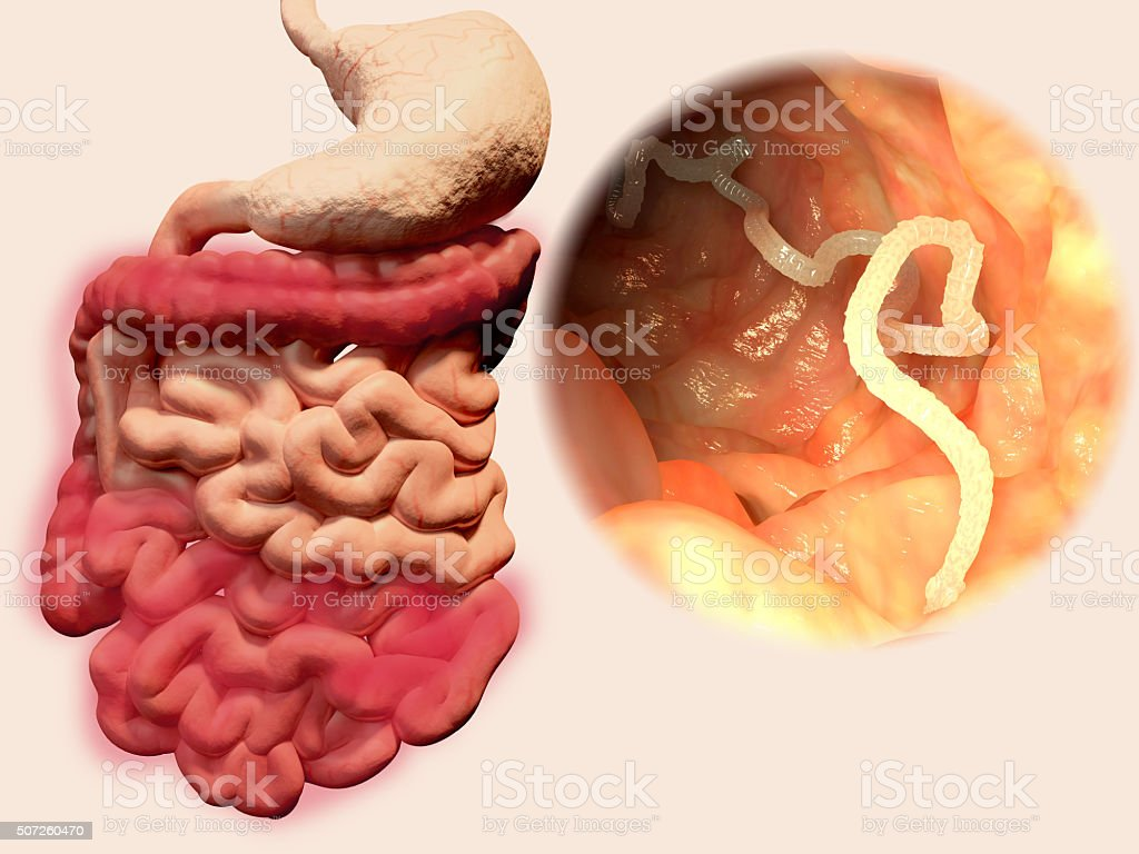 Tapeworm in the gastrointestinal tract stock photo