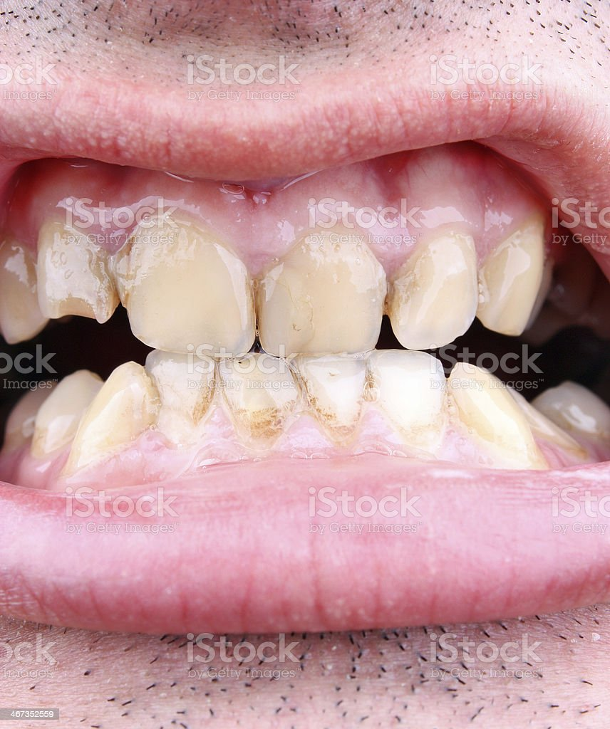 Tartar and tooth decay stock photo
