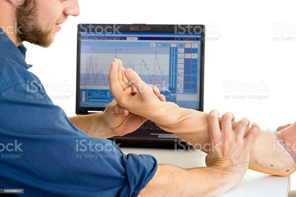 Technician helps man with prosthetic arm. stock photo