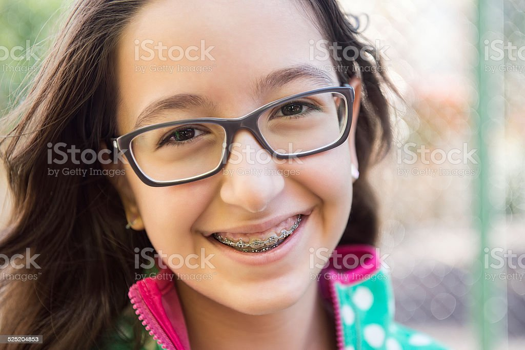Teenage girl with braces stock photo