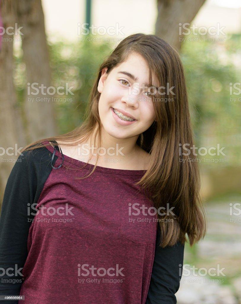 Teenage girl with orthodontic braces on her teeth stock photo