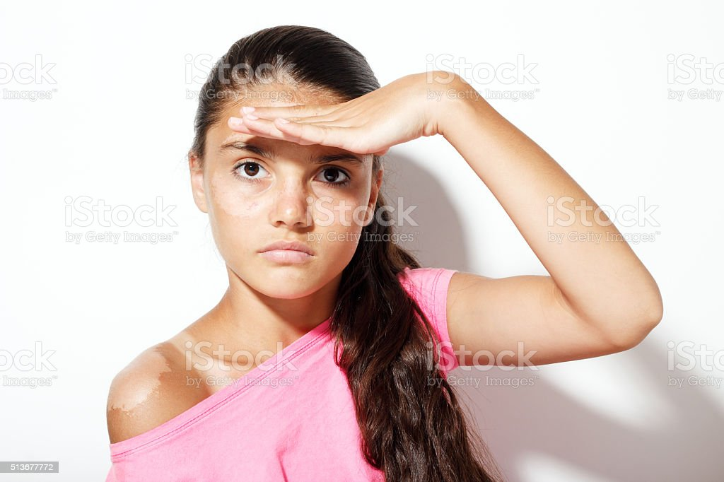 Teenager girl with sunburn stock photo