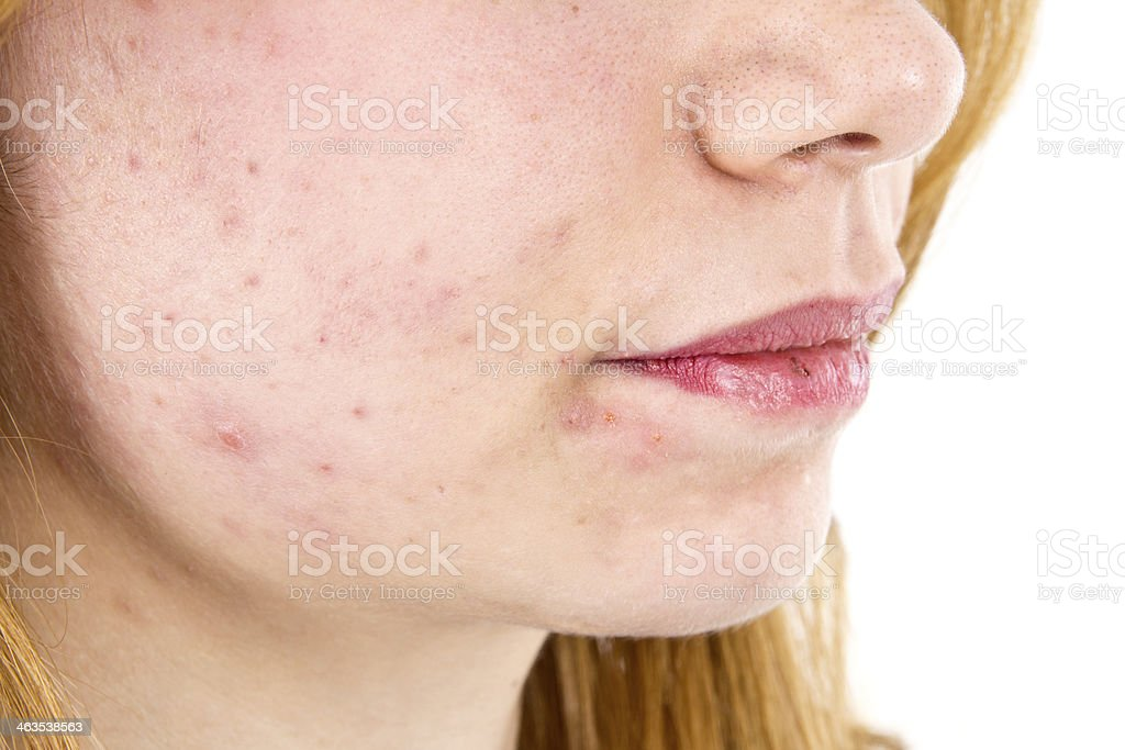 Teenager problems royalty-free stock photo