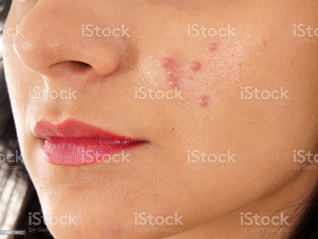 Teenager Problems stock photo
