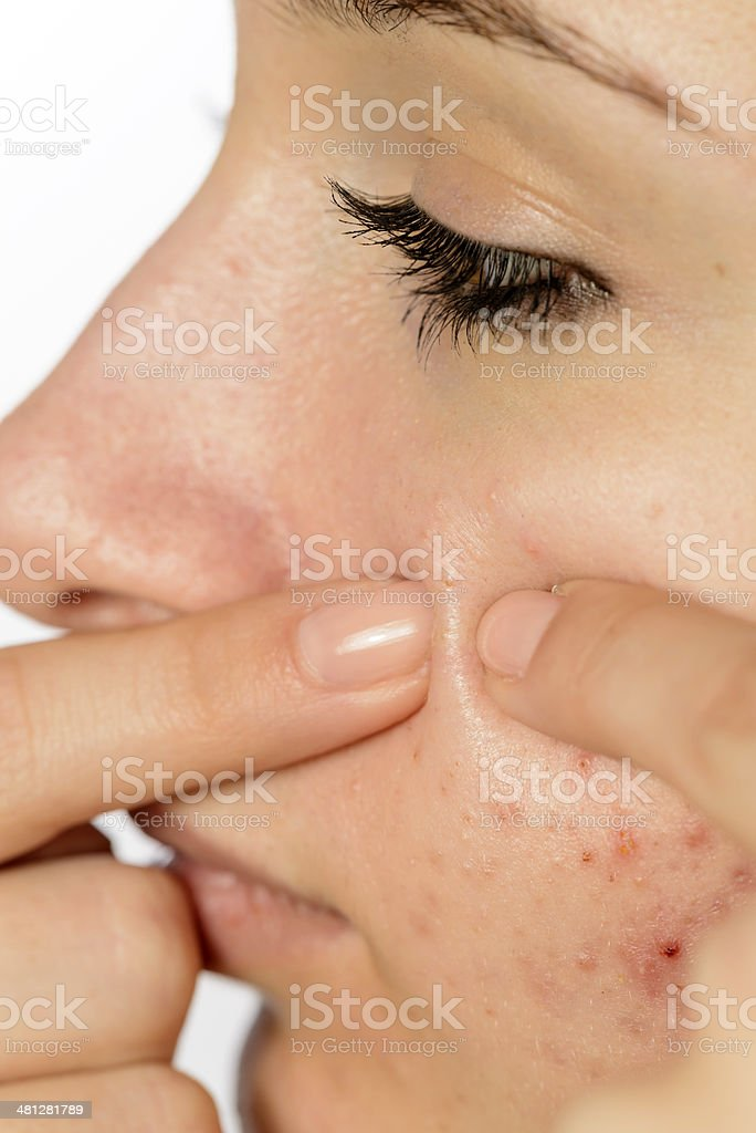 teenager with acne royalty-free stock photo