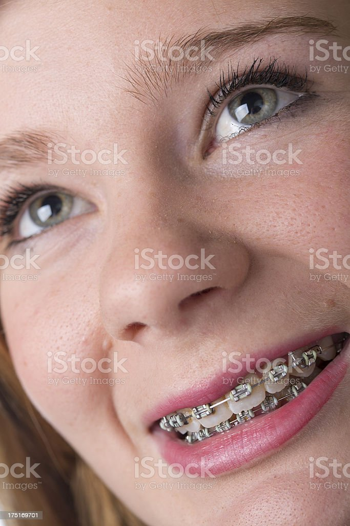 Teenager With Teeth Braces royalty-free stock photo