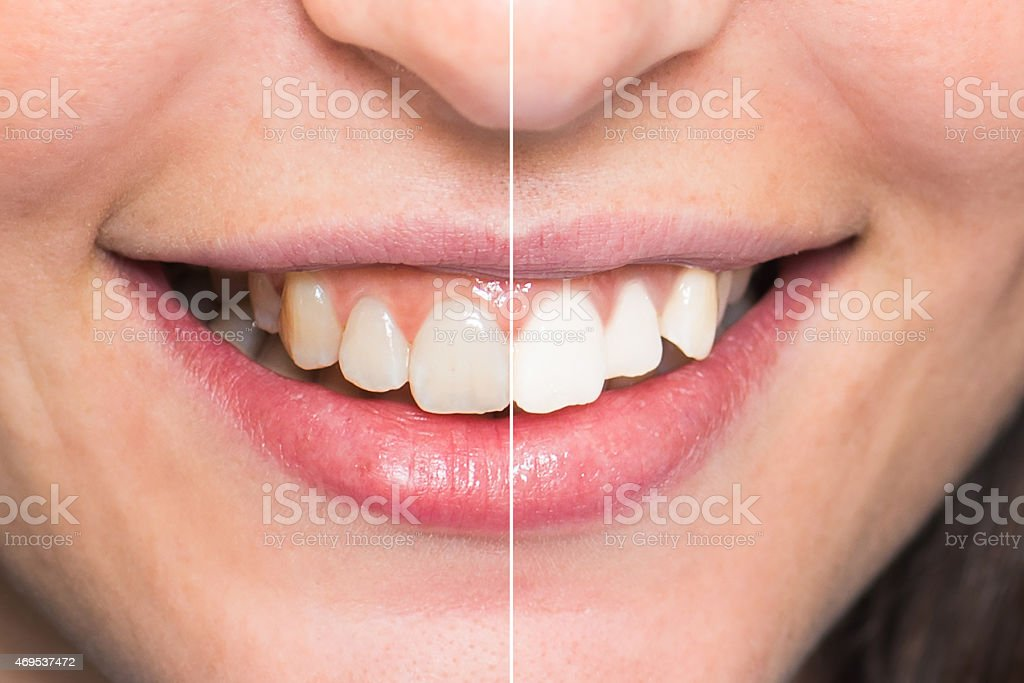 Teeth After and Before Whitening - Dental Care stock photo