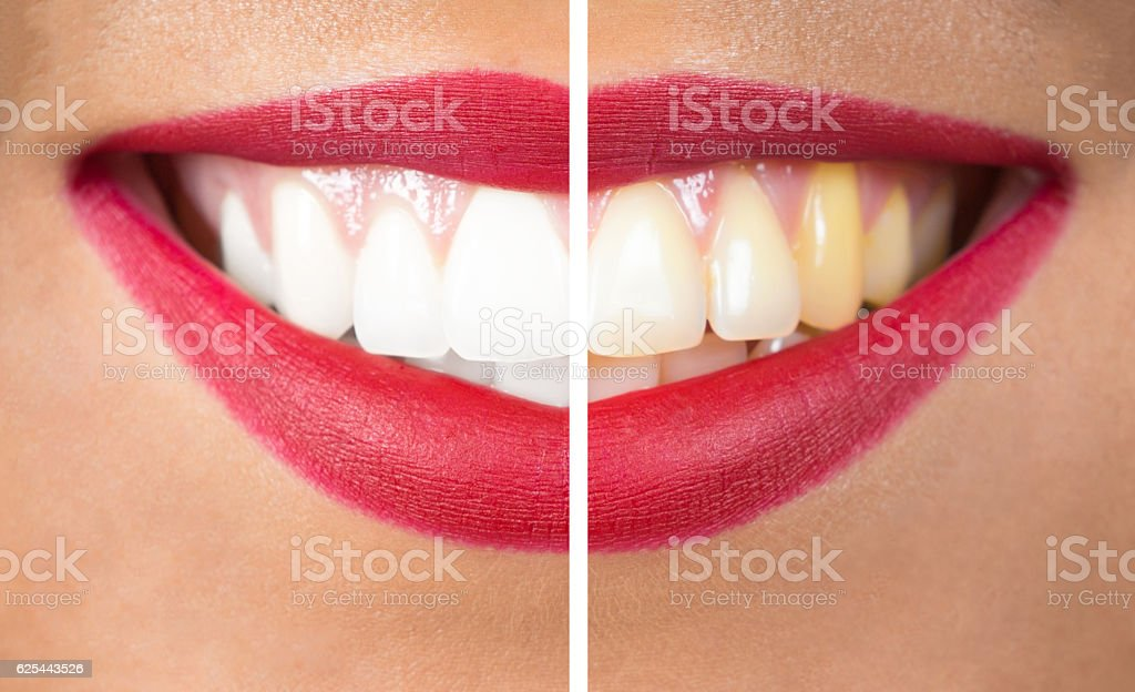 Teeth After and Before Whitening stock photo