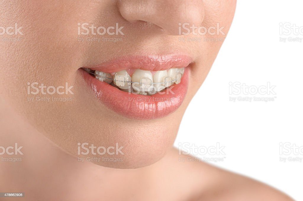 Teeth alignment. Braces. Beautiful woman smiling. stock photo
