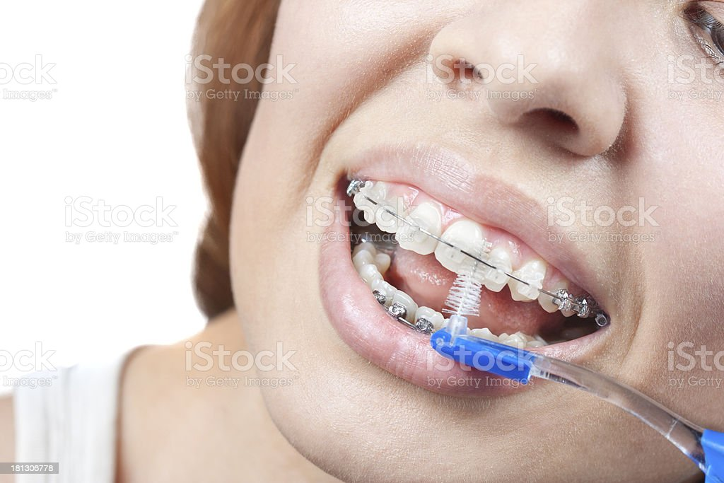 Teeth and braces. royalty-free stock photo