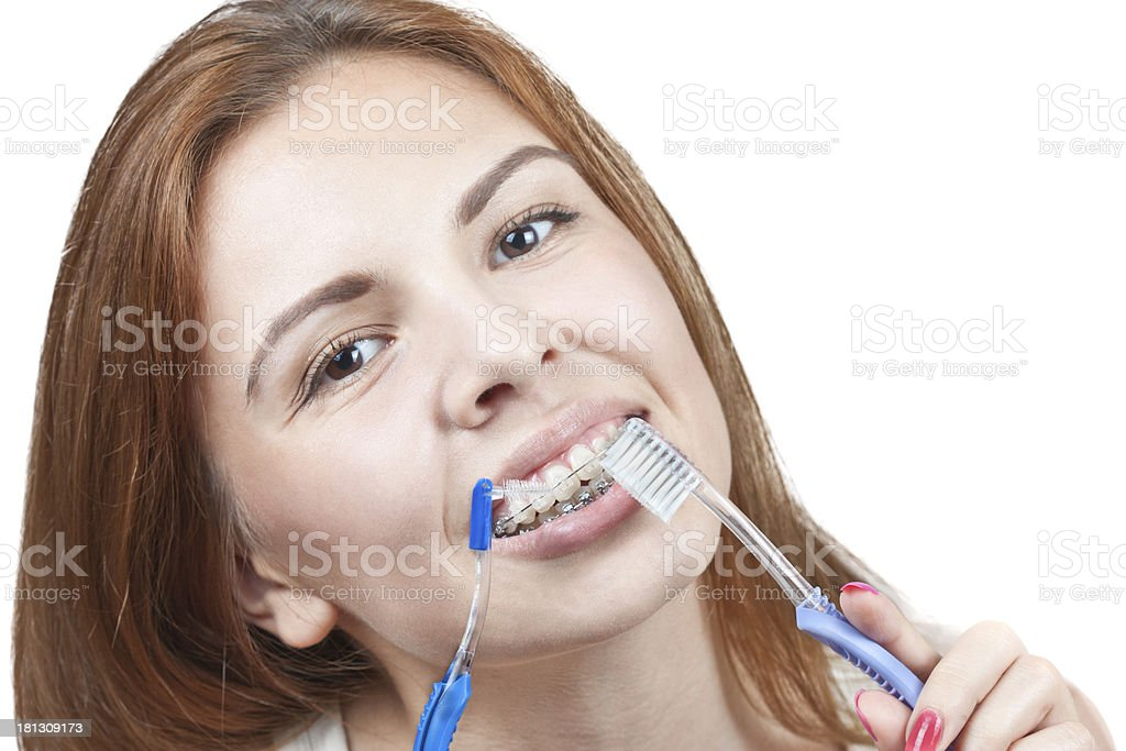 Teeth and braces royalty-free stock photo
